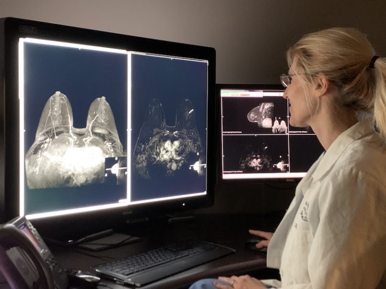 doctor reading a breast image