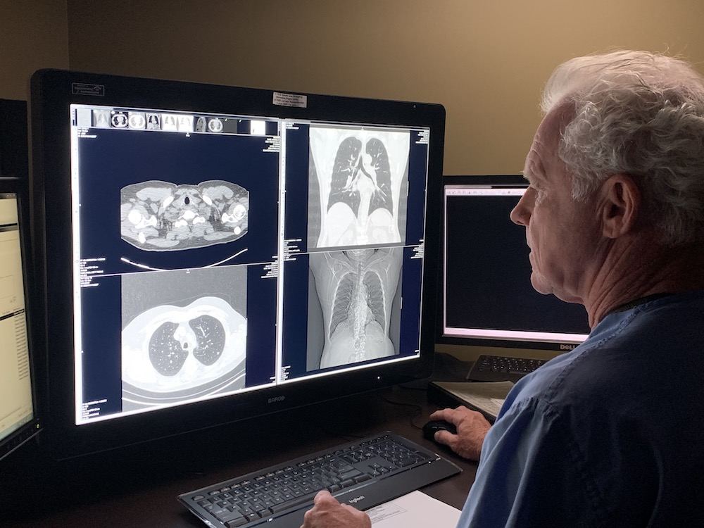 lung screening image