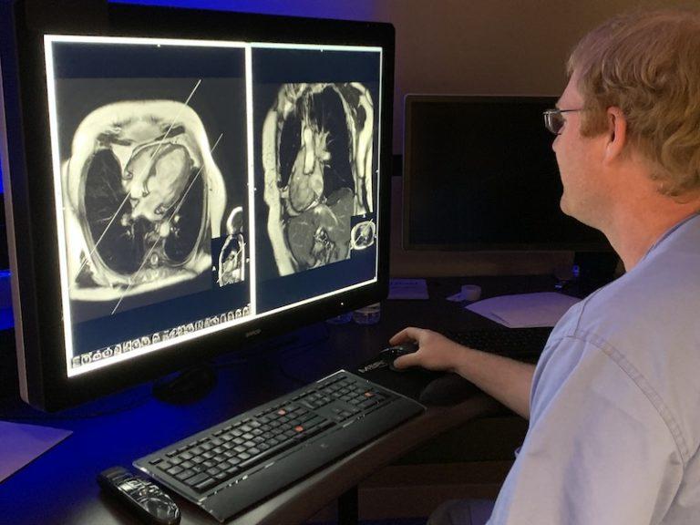 Radiologist reads cardiac MRI