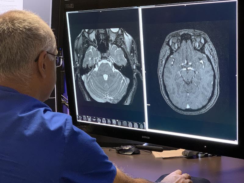 Neuroradiology image Naperville